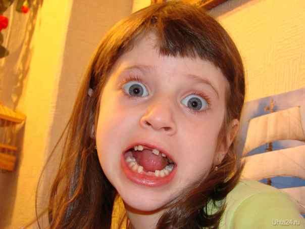 Сколько молочных зубов выпадает у ребенка?