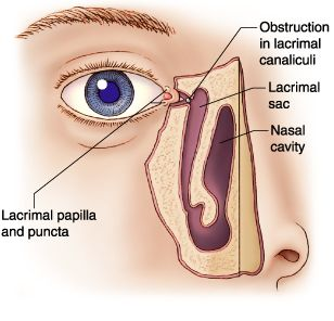 Глаз ребенка раствор фурацилина для