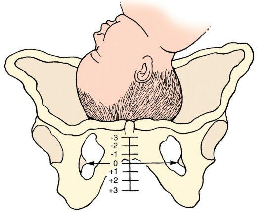 14 неделя беременности боли лобковой кости