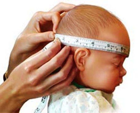 Непосильная ноша — гидроцефалия у новорожденного