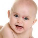 Пигментные родимые пятна у новорожденных малышей