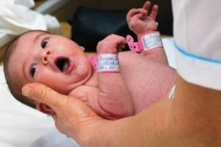 Асфиксия новорожденного проявляется в нарушении дыхания
