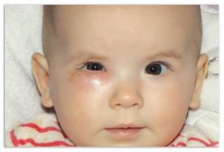 Второй причиной дакриоцистита может стать сужение носослезного канала