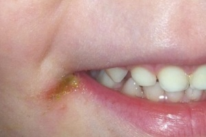 Проблема заед и лечение недуга у детей