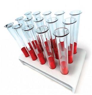 Но опытные специалисты, проведя первичный осмотр и задав некоторые вопросы, могут порекомендовать сдать кровь