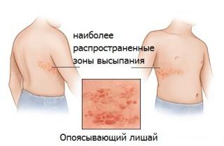 Причина, вызывающая опоясывающий герпес, существует только одна - это попадание вируса в организм