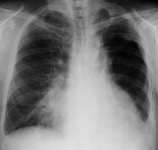 Диагностируют воспаление легких с помощью рентгенологического исследования