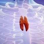 Вилочковая железа, как причина частых болезней ребенка