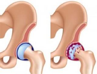 Заболеванию остеохондрита головки бедренной кости подвержены дети в раннем возрасте