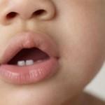 Первые зубы у младенцев: симптомы и признаки прорезывания