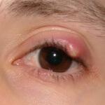 Как лечить ячмень на глазу у ребенка: медикаменты и народные рецепты