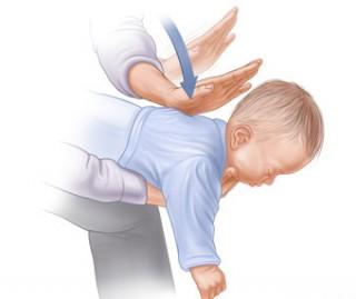 Нередко причиной сухого кашля у ребенка становится инородное тело, попавшее либо в дыхательные пути