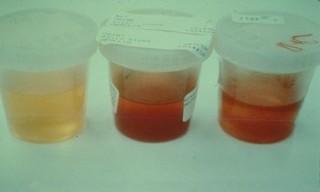 Содержание повышенного числа эритроцитов в моче - это повод для срочного обращения к врачу