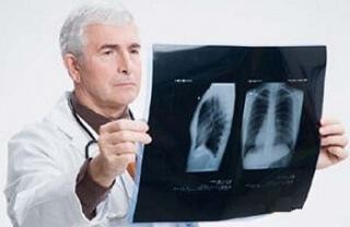 Одним из способов диагностики пневмонии является рентгенограмма легких