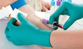 У женщин с сахарным диабетом уровень ХГЧ повышен