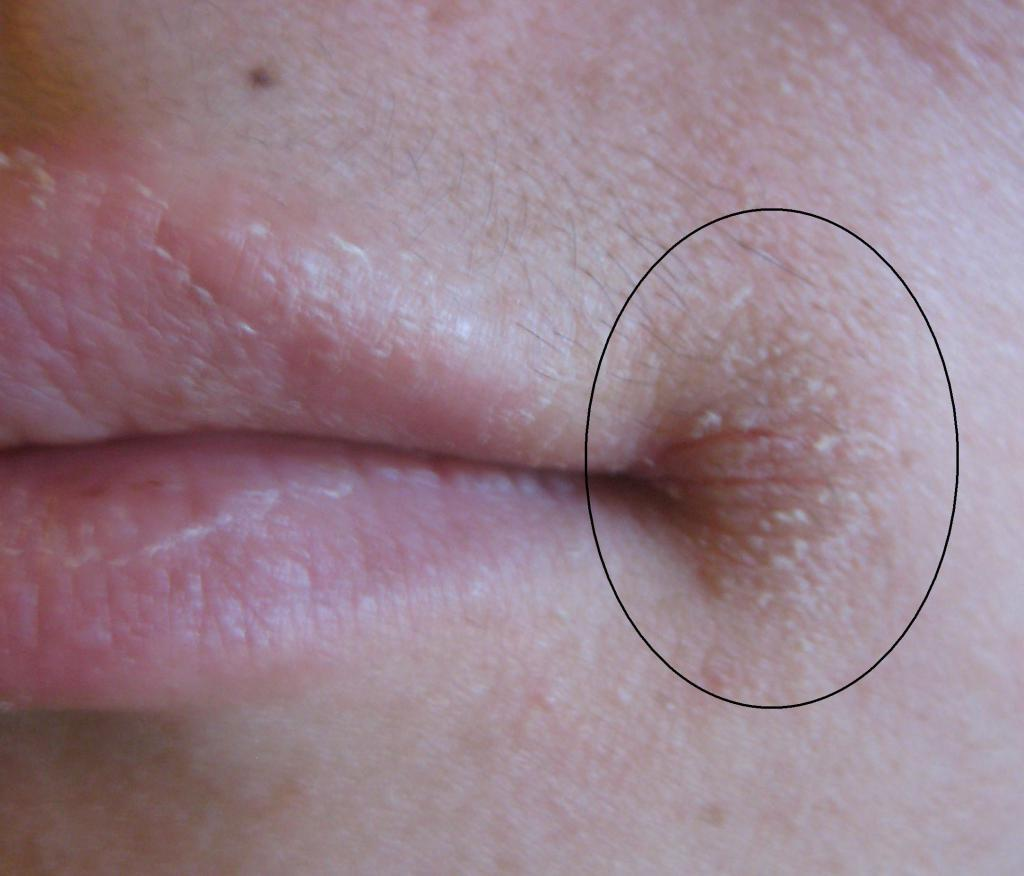 Чем лечить заеды в уголках губ у детей: поговорим о наболевшем
