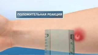 Осмотр результатов постановления пробы осуществляется фтизиатром через три дня
