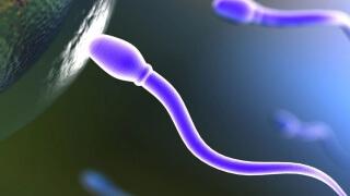 sperm1