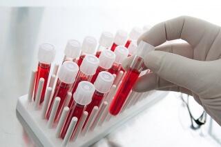 Основная функция эритроцитов - перемещение кислорода к клеткам организма