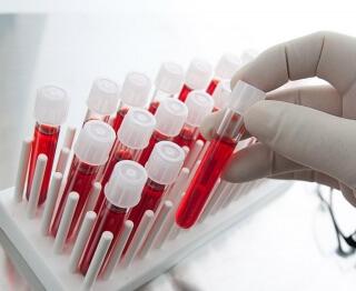 Фибриноген - белок, влияющий на свертываемость крови