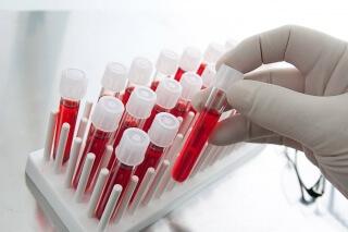 Чтобы определить уровень прогестерона производится анализ крови