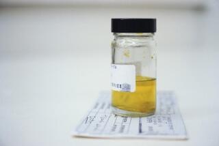 Появление ацетона в моче - симптом нарушения в работе организма