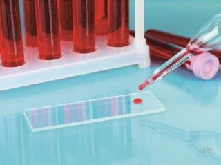 Нормальные показатели глюкозы в крови беременной женщины