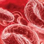 Низкий гемоглобин у грудного ребенка: причины и симптомы