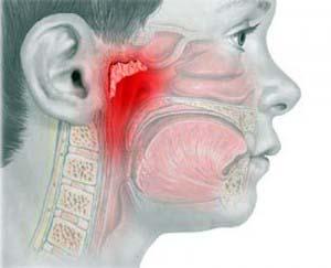 Воспаление аденоидов - достаточно серьезное заболевание