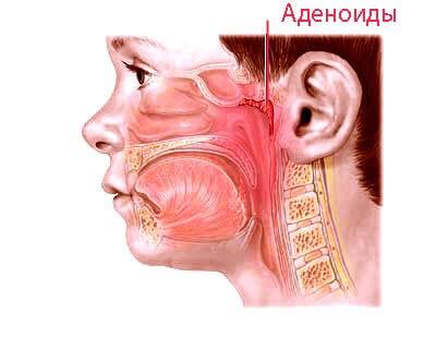 Комаровский про аденоиды у детей, причины их появления, симптоматику и лечение