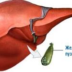 Загиб желчного пузыря: патология пищеварительного тракта