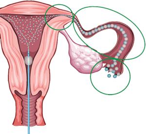 Гистеросальпингография - способ исследования состояния маточных труб у жещин