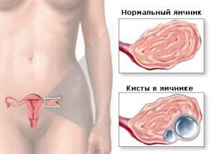 Поликистоз яичников - одна из причин задержки месячных