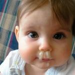 Как лечить желтые сопли у ребенка: эффективные методы терапии