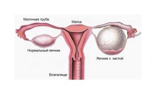 Киста яичника - серьезное женское заболевание