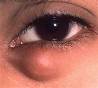 Халязион - заболевание, поражающее глаз ребенка