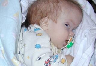 Гидроцефальный синдром - недуг, поражающий головной мозг младенца