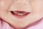 Какова очередность появления зубов у детей: выясняем вместе