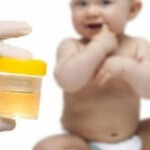 У ребенка повышен белок в моче: что делать?