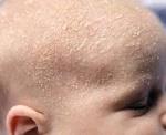 Шершавая кожа у грудничка: основные причины патологии