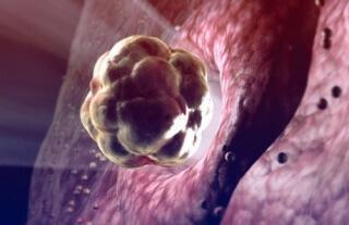 Овуляция - выход яйцеклетки из яичника
