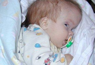 Основная причина недуга - осложненная беременность и тяжелые роды