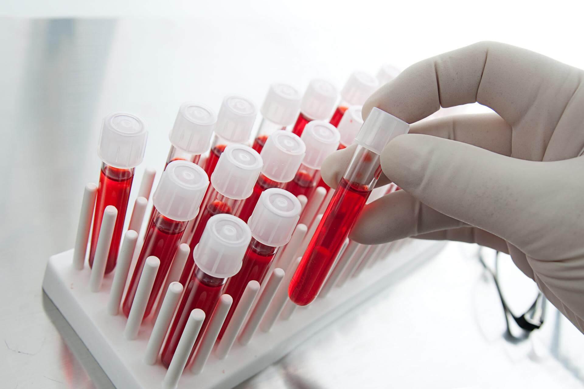 Что показывают лейкоциты в крови у детей: об этом нужно знать