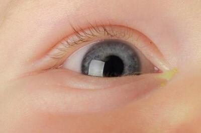 Гноятся глаза у ребенка: причины и лечение патологии