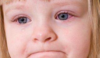 Конъюнктивит - причина закисания глаза