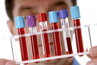 Анализ крови на гормоны - один из составляющих моментов обследования