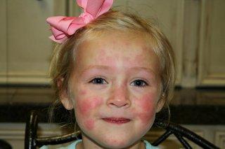 Сыпь на теле - основной симптом недуга