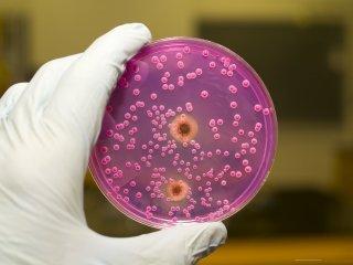 Кандидоз кожи - опасное заболевание при беременности