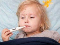 Беременность и ветрянка у старшего ребенка: как защитить себя