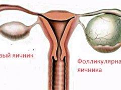 Фолликулярная киста и беременность: что говорят специалисты